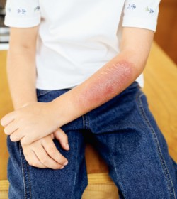 Atlanta Burn Injury Attorneys